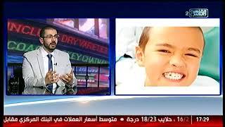 الناس الحلوة   أسباب الجز على الأسنان وطرق علاجها مع دكتور مراد ناشد