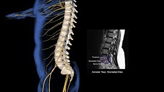 Spinal Injury Animation