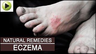 Skin Care - Eczema - Natural Ayurvedic Home Remedies