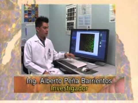 Microscopía Confocal de barrido Laser (MCBL)