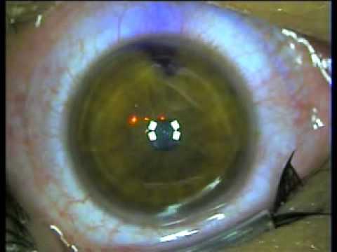 Operacion miopia Laser Excimer LASIK