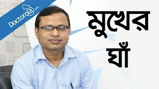 Aphthous Ulcers in Bangla