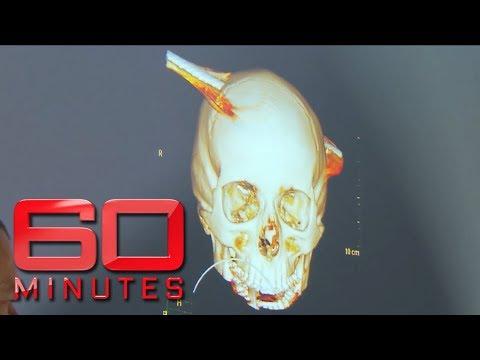 Xxx Mp4 Teen Survives After Steel Pole Speared Through Skull 60 Minutes Australia 3gp Sex