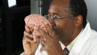 Ben Carson dissects a plastic brain on politics