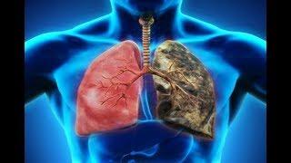 طهر رئتيك من السموم في 3 أيام فقط ومن آثار التدخين طرق طبيعية لعلاج الرئتين !