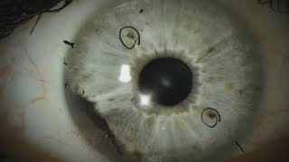 Rare eye cancer affects 2 groups of people in N.C. and Alabama