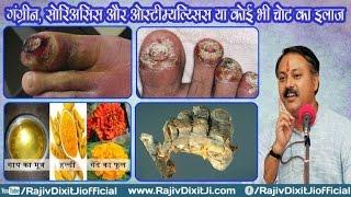 Gangrene,psoriasis And Osteomyelitis Treatment By Rajiv Dixit Ji