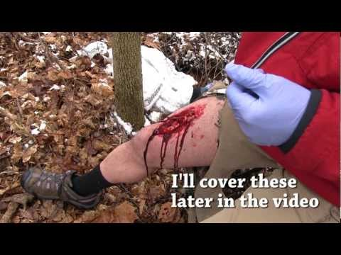 Field Wound Care - Tips for surviving a severe wounds away from medical care