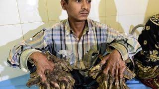 TreeMan of Bangladesh Abul Bajandar বৃক্ষ মানব Long video of Human Tree