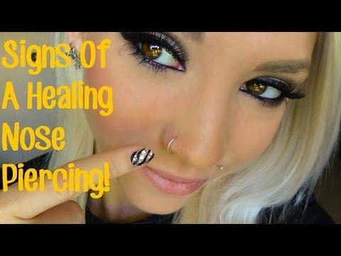 Xxx Mp4 Signs Of A Healing Nose Piercing 3gp Sex