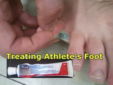 Athlete s Foot What is it how to treat it and how to avoid it A must watch