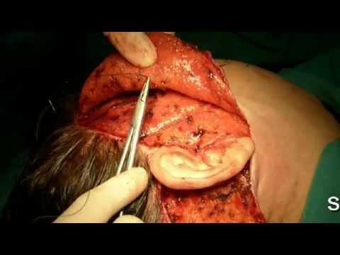 Rejuvenecimiento facial completo HD Cirugia facial Lima Peru Dr Guanilo
