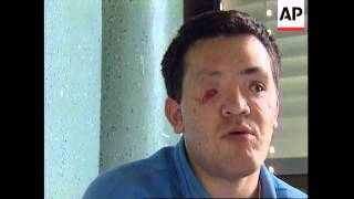 BOSNIA: SOLDIER BLINDED IN FINAL DAYS OF BOSNIAN CONFLICT
