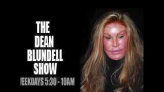PLASTIC SURGERY FACE Dean Blundell Show 102.1 THE EDGE FM