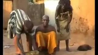 علاج الصداع النصفي في أفريقيا