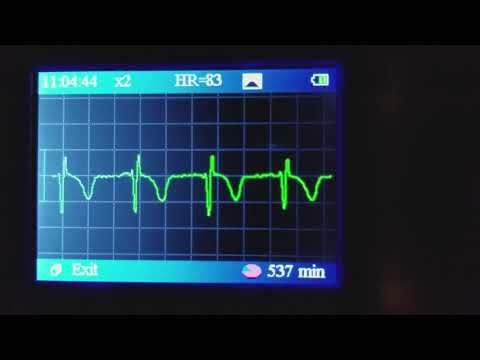 Wife irregular heartbeat