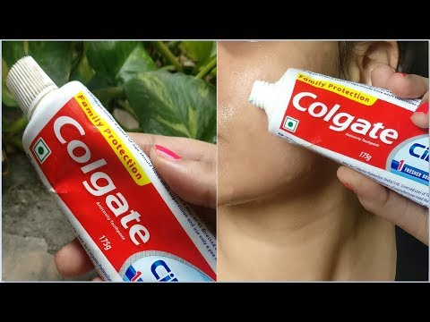 i Apply Toothpaste on my skin & look what happened, Toothpaste Beauty Hacks for Black heads, Acne