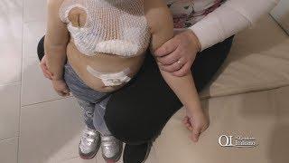 Bari, tolta assistenza domiciliare a bimba trapiantata di 3 anni: l