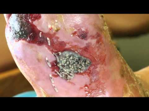 Maggot Therapy revised by Jose Elizondo PA C