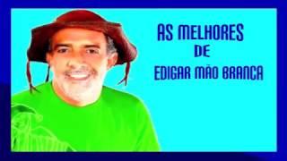 EDGAR MÃO BRANCA  MENINO
