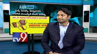 Piles, Fissure, Fistula and Varicose Veins || Laser treatment || Life Line - TV9