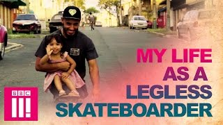 The Extraordinary Double Amputee Skateboarder | Living Differently