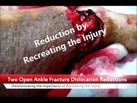 Two Open Ankle Dislocation Reductions