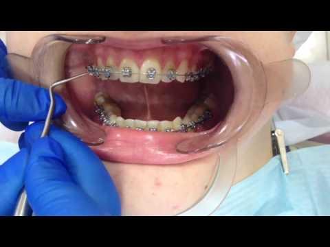 Перед брекетами лечат все зубы