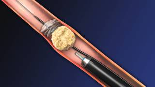 CoAx 10mm Stone Control Catheter from Accordion Medical