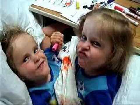 Conjoined Twins Herrin Twins Two lives Full of Miracles
