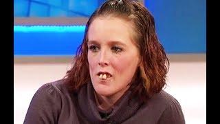 Все насмехались над ней из-за её зубов, но только взгляните, как она преобразилась