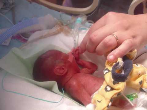Hunter & Darcy 22 week premature twins Survivors