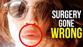 Priyanka Chopra Accused & Insulted For Her Lips, Pout Selfie Gets Trolled