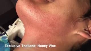 Beard Waxing by Exclusiva Honey Wax