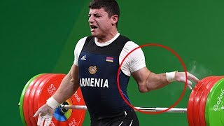 Top 5 Most GRUESOME Weightlifting Injuries