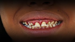 Woman Who Never Lost Her Baby Teeth