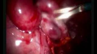 Adhesions and the female organs