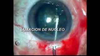 Cirugia de Catarata - mini nuc