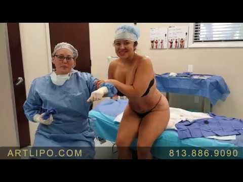 Xxx Mp4 Awake BBL Brazilian Butt Lift No Fat Transfer Ultra Complete Liposuction Expert Dr Gruber 3gp Sex