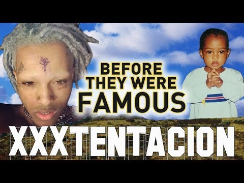 Xxx Mp4 XXXTENTACION Before They Were Famous UPDATED Biography 3gp Sex