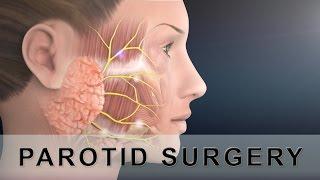 Parotid Surgery Animation