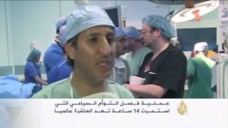 نجاح عملية فصل التوأم السيامي السوري تقى ويقين ـ تقرير قناة الجزيرة