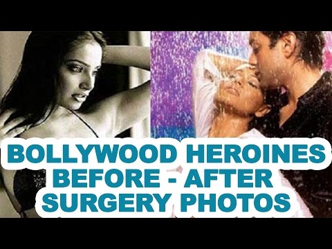 Xxx Mp4 Bollywood Heroines' Before After Surgery Photos Exclusive 3gp Sex