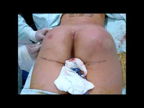 Dr. García Cirugía de Glúteos con Prótesis