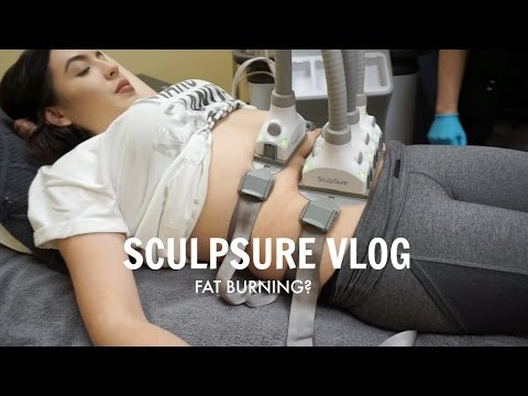 MELTING MY FAT? Sculpsure Experience Vlog | Solange Nicole