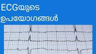 ECGയുടെ ഉപയോഗങ്ങൾ
