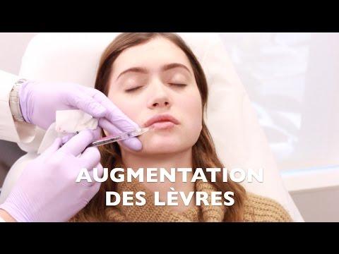 Xxx Mp4 MES INJECTIONS AUX LÈVRES 3gp Sex