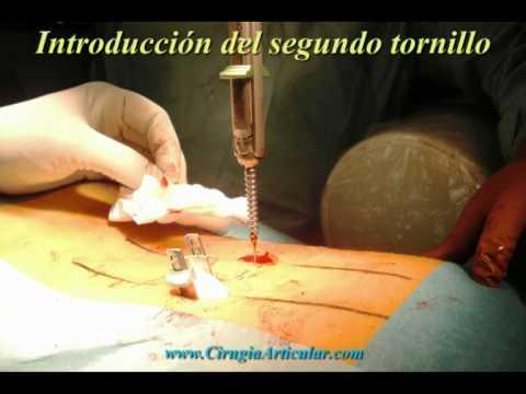 Fractura vertebral trada mediante fijacion percutanea o minimamente invasiva