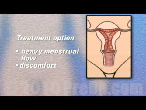PreOp® Patient Edu Hysterectomy Removal of Uterus Ovaries and Fallopian Tubes Surgery