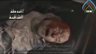 Sahaba Hujr Ibn Adi body (RA) - Subhanallah |  ஸஹாபி ஹுஜ்ர் இப்னு அதி (ரழி) அவர்களின் உடல்